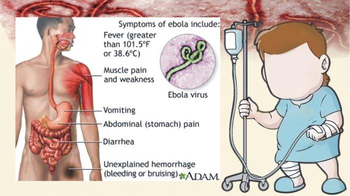 Virus Ebola Virus Berbahaya Selain Corona